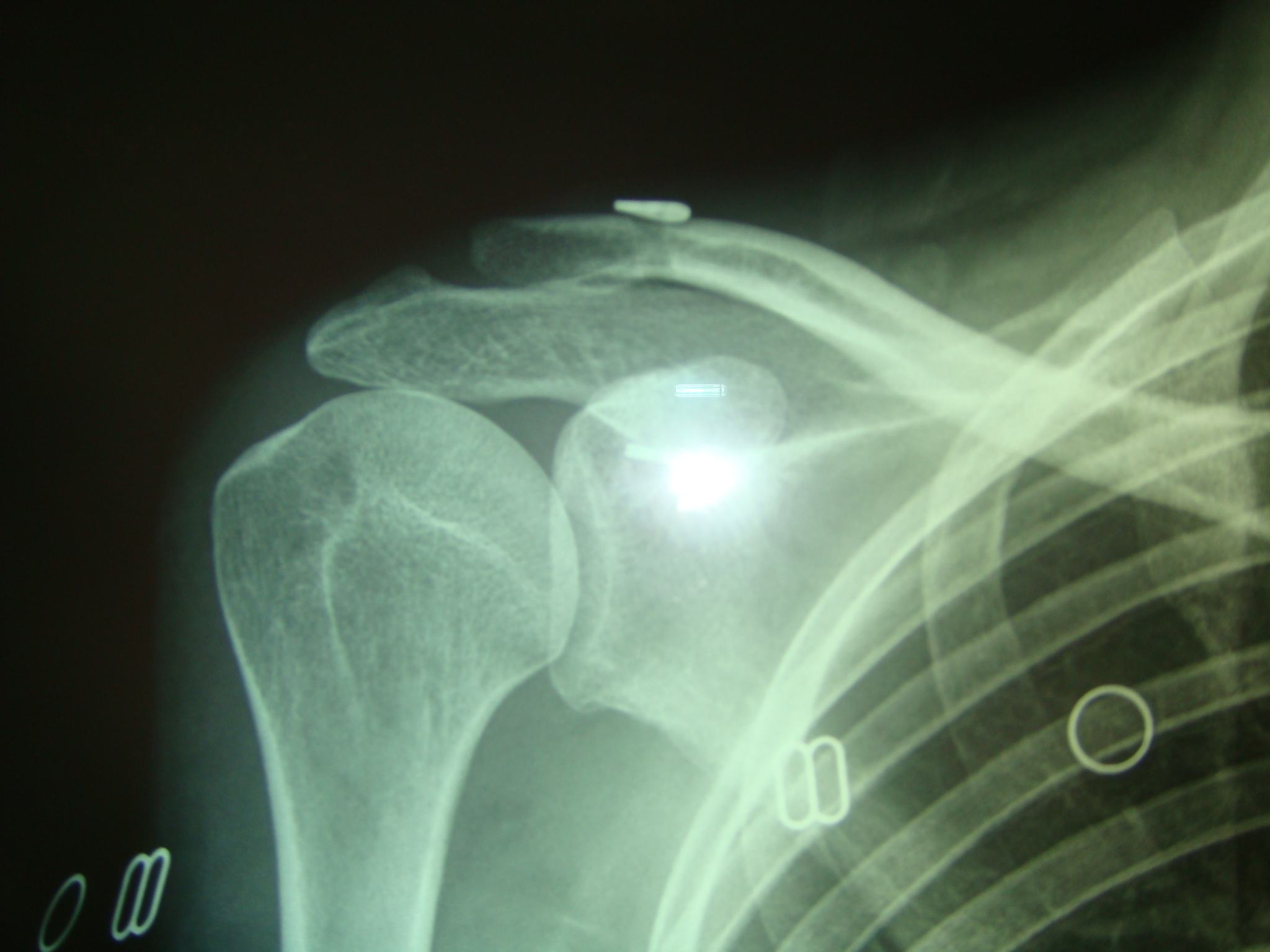 acromioclavicularDislocation5