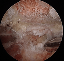 ArticlesContent-scapuloThoracicKeyholeSurgery6